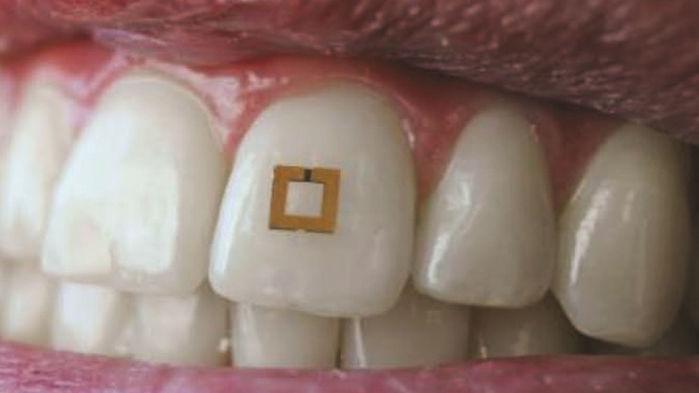 teeth_16x9